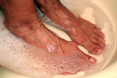 Therapeutic foot bath. Pedicure. Medical hygienic procedure. Washing feet. Patients with old feet with calluses stock photos