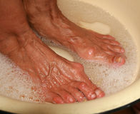 Therapeutic foot bath. Pedicure. Medical hygienic procedure. Washing feet. Patients with old feet with calluses stock photography