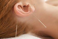 Therapie des weiblichen Ohrs mit dem Durchstechen von Nadeln Lizenzfreies Stockbild