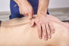Therapist doing diacutaneous Fibrolysis, of the hooks healing treatment on man& x27;s back. Alternative medicine. Chiropractic, royalty free stock photos