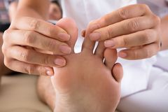 Therapist Treating Person`s Foot. Close-up Of A Therapist`s Hand Treating Person`s Foot In Clinic stock image