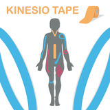 Therapy with kinesiology tape. Body and an example blend. Vector illustration. Stock Photo