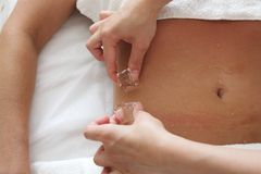 Therapy of suntanned body with ice cubes Stock Photo