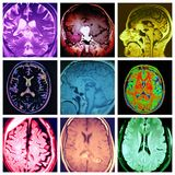 Brain different pathology colorful collage. There are brain different types of pathology ,which with help of MRI revealed changes in some parts of brain. Modern stock illustration