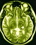 Brain cavernous malformation pathology mri exam. There is pathology of brain  which was reaveled during MRI exam , which was ordered by doctor due to symptoms of Stock Photo