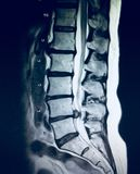 Severe pathology of lumbar spine herniation mri. There is pathology of lumbar spine on the level of L4- L5 discs where herniation severely compressed cauda royalty free stock photos