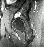Right hip osteoarthritis pathology mri exam. There are pathology of right hip , which were revealed during MRI exam , as hip osteoarthritis , ganglion acetabular royalty free stock images