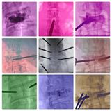 Radiofrequency ablation spinal vertebrae colorful collage royalty free stock photo