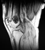 Knee oncological disease mri diagnostic exam. There is severe pathology of knee , which revealed during magnetic resonance imaging . Large black spot on the bone Royalty Free Stock Photography