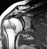 Right humeral surgical neck fracture mri exam. There is very painful  and often happened during car accidents or  sport events pathology as humeral surgical neck Stock Photos