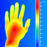Thermal imager medical scan Human hand. The image of a arm using Infrared Thermograph. Scale is degrees Fahrenheit. Thermal imager medical scan Human hand Stock Photography