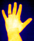 Thermograph-Hand & ring. Real infrared (thermic) photo of a yellow hand with ring Royalty Free Stock Image