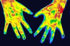 Thermographie in der Medizin stockbilder
