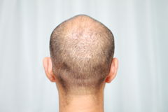 Thin hair Stock Photos