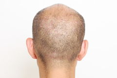 Thin hair Stock Images