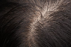Thinning hair and scalp. Closeup head with thinning hair and scalp Royalty Free Stock Photography