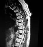 Thoracic kręgosłupów ciała ściskania patologiczny mri obrazy royalty free