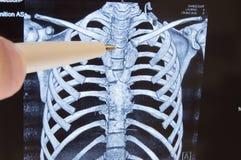 Thoracic kręgosłup MRI lub CT promieniowania rentgenowskiego wizerunek Lekarka punkty thoracic kręgosłupa Radiologiczny wizerunek Fotografia Royalty Free