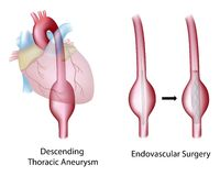 Thorakal aortic aneurysm Arkivfoton