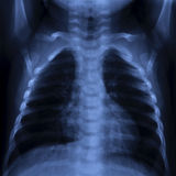 Thorax X Ray. X Ray of a thorax with visible lung, ribs, spine and heart Stock Photos