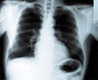 Thorax x-ray Stock Photography