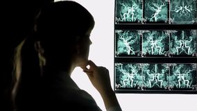 Thoughtful doctor looking at blood vessels x-ray, health care, neurosurgeon royalty free stock photo