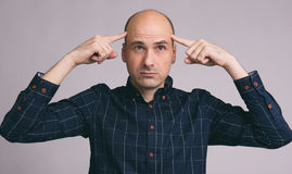 Thoughtful young bald man Stock Image