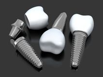 Three Dental implant Stock Photography