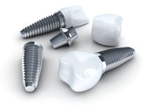 Three Dental implant Royalty Free Stock Photo