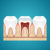 Three healthy human tooth Stock Photo