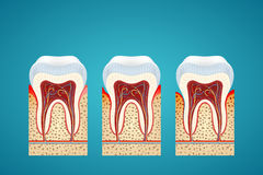 Three human tooth in cutaway with gum disease. On blue background Stock Images