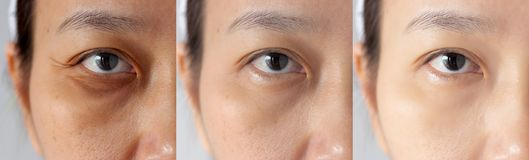 Three pictures compared effect Before and After treatment. under eyes with problems of dark circles ,puffiness and wrinkles. Periorbital before and after royalty free stock image