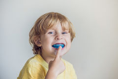 Three-year old boy shows myofunctional trainer to illuminate mouth breathing habit. Helps equalize the growing teeth and correct. Bite. Corrects the position of stock photo