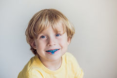 Three-year old boy shows myofunctional trainer to illuminate mouth breathing habit. Helps equalize the growing teeth and correct. Bite. Corrects the position of stock image