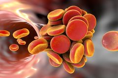 Thromboembol in blood vessel. Clot formation, 3D illustration Royalty Free Stock Photography