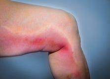 Thrombophlebitis in human leg Stock Images