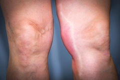 Thrombophlebitis in human leg Stock Photography