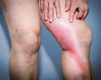 Thrombophlebitis in human leg Royalty Free Stock Photos