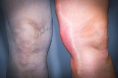 Thrombophlebitis in human leg Royalty Free Stock Photos