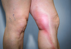 Thrombophlebitis in human leg Royalty Free Stock Photo
