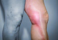 Thrombophlebitis in human leg Royalty Free Stock Images