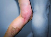 Thrombophlebitis in human leg Stock Photo