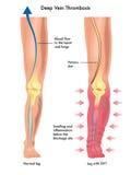 Thrombose profonde de veine illustration de vecteur