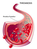 Thrombosis royalty free illustration