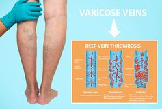 Thrombosis. From Normal blood flow to Blood clot formation. And clot, that travels through the bloodstream. Embolism. biological, medical, and science use stock photography