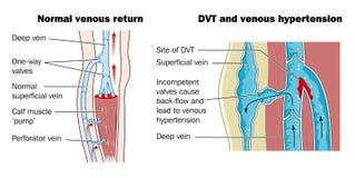 Thrombosis profundo da veia ilustração stock