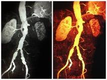 thrombus ectatic das artérias ilíacas do rim atrófico do mra 3d imagens de stock royalty free