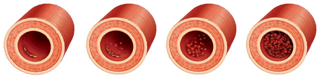 Thrombus formation Stock Images