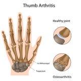 Thumb arthritis. Base of thumb (carpometacarpal joint)arthritis, eps8 stock illustration