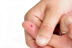 Thumb from a Bloody Finger Royalty Free Stock Photos